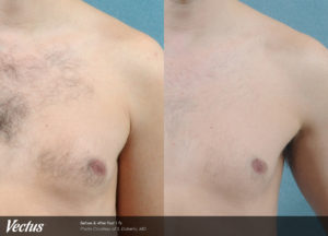 vectus_s_doherty_hair_chest3_preposttx1-ok-copy